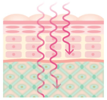 マイクロカレント